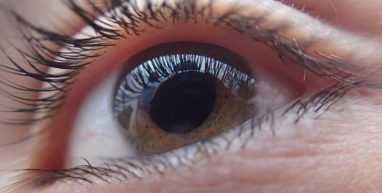 cbn come alleato contro il glaucoma